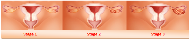 ovarian cancer stages pic